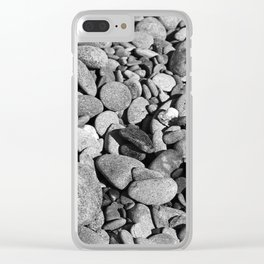 Stoney Clear iPhone Case