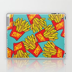 Would You Like Fries With That? Teal Laptop & iPad Skin