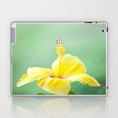 Yellow Hibiscus 2 Laptop & iPad Skin
