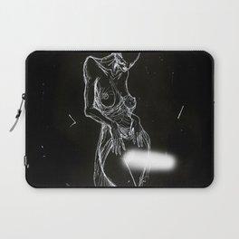 Phantom Limb Laptop Sleeve