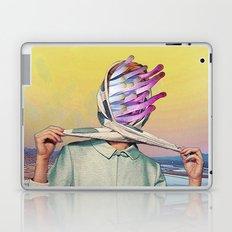 Bay View Laptop & iPad Skin