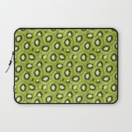 You Hold the Kiwi to My Heart Laptop Sleeve