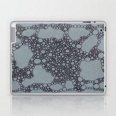 Black Bubbles  Laptop & iPad Skin