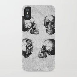 Vintage Medical Engravings of a Human Skull iPhone Case