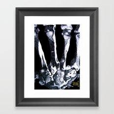 Hand Bones Framed Art Print