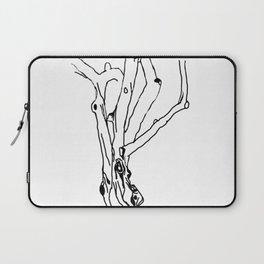 unfinished tree Laptop Sleeve
