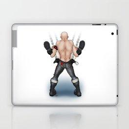 In The Sling Laptop & iPad Skin