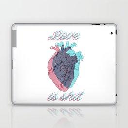 Love is shit Laptop & iPad Skin