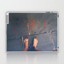 Flaw Laptop & iPad Skin