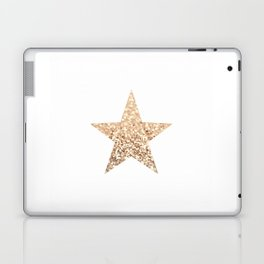 GOLD STAR Laptop & iPad Skin