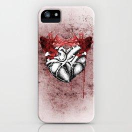 Love Affair 2 iPhone Case