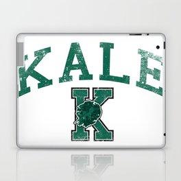 University of Kale Laptop & iPad Skin