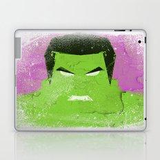 The Grunge Green Rage Laptop & iPad Skin