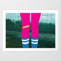 Bruised Knees Art Print