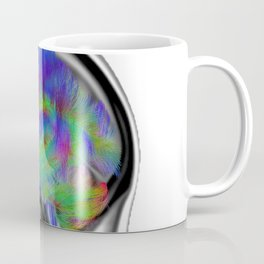Sagittal Clear Coffee Mug