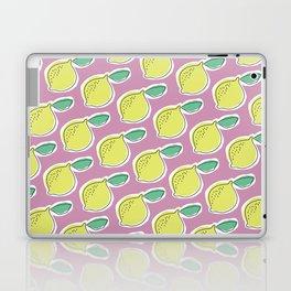 lemony Laptop & iPad Skin