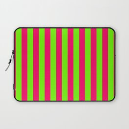 Super Bright Neon Pink and Green Vertical Beach Hut Stripes Laptop Sleeve