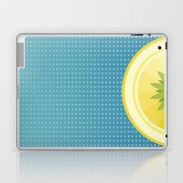 Blue Hawaiian Laptop & iPad Skin