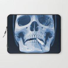 Skull Smoking Cigarette Blue Laptop Sleeve