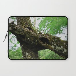 The Scars of Your Love Laptop Sleeve