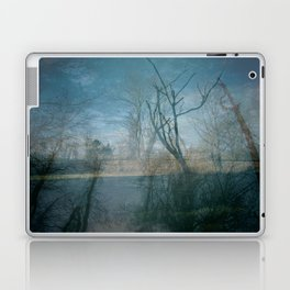 backyard Laptop & iPad Skin