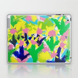 Impressionistic Daisies in the Garden Laptop & iPad Skin