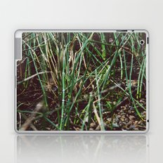 Shoots Laptop & iPad Skin