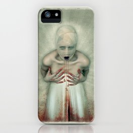 Losing Teeth iPhone Case
