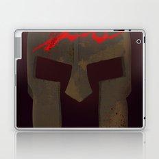 300 Laptop & iPad Skin