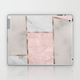 Pink stones - rose gold adorns Laptop & iPad Skin