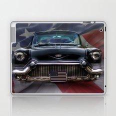 Black American Caddy  Laptop & iPad Skin