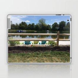 Sunny Lake Beach Laptop & iPad Skin