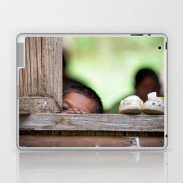 Curious Laptop & iPad Skin
