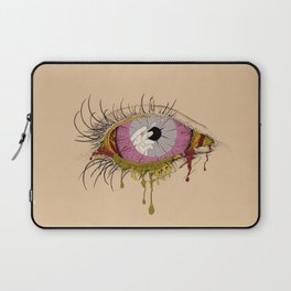 Sight of the Surgeon Laptop Sleeve