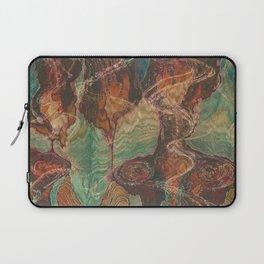 Ecstatic Pelvis (Meat Flame) Laptop Sleeve