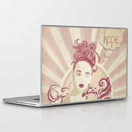 Pandora lost an eye Laptop & iPad Skin
