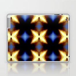 The X Factor Laptop & iPad Skin