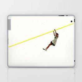 Zip Wire Laptop & iPad Skin