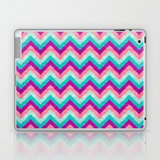 Chevron - Girly Laptop & iPad Skin