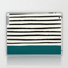 Dark Turquoise & Stripes Laptop & iPad Skin
