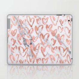Hearts Rose Gold Marble Laptop & iPad Skin