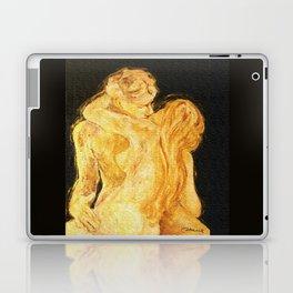 Eternal Kiss Laptop & iPad Skin