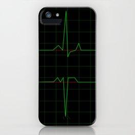 Normal Heart Rhythm iPhone Case