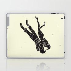 Head Over Heels - Revisited Laptop & iPad Skin