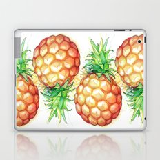 Fat Pineapple 1 Laptop & iPad Skin