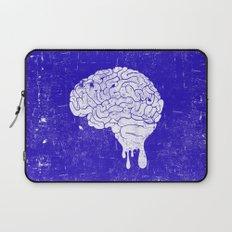 My gift to you II Laptop Sleeve