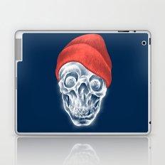sCOOL! Laptop & iPad Skin
