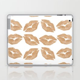 Rose Gold Lips Heart with Lips Laptop & iPad Skin