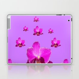 PURPLE ORCHID FLOWERS RAIN YELLOW ART Laptop & iPad Skin