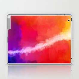For the Love of Color Laptop & iPad Skin